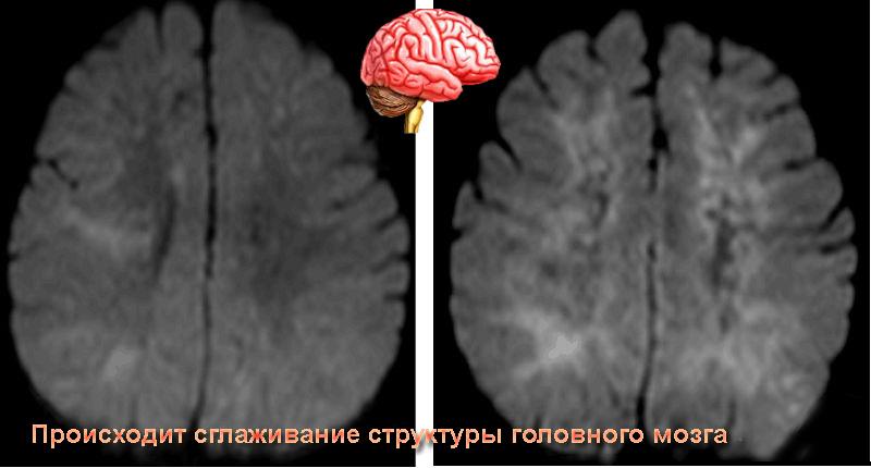 Энцефалопатия.