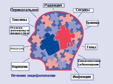 Признаки микроангиоэнцефалопатии что это
