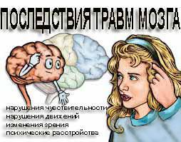 Травма мозга, ЧМТ