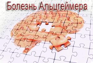 Новое в лечении болезни альцгеймера